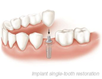 Implant Single-Tooth Restoration